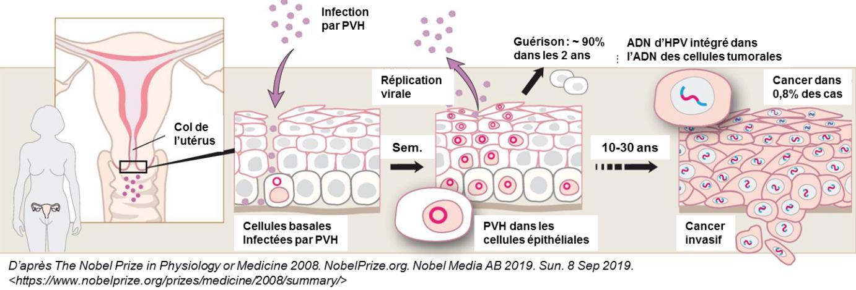 papillomavirus et cancer